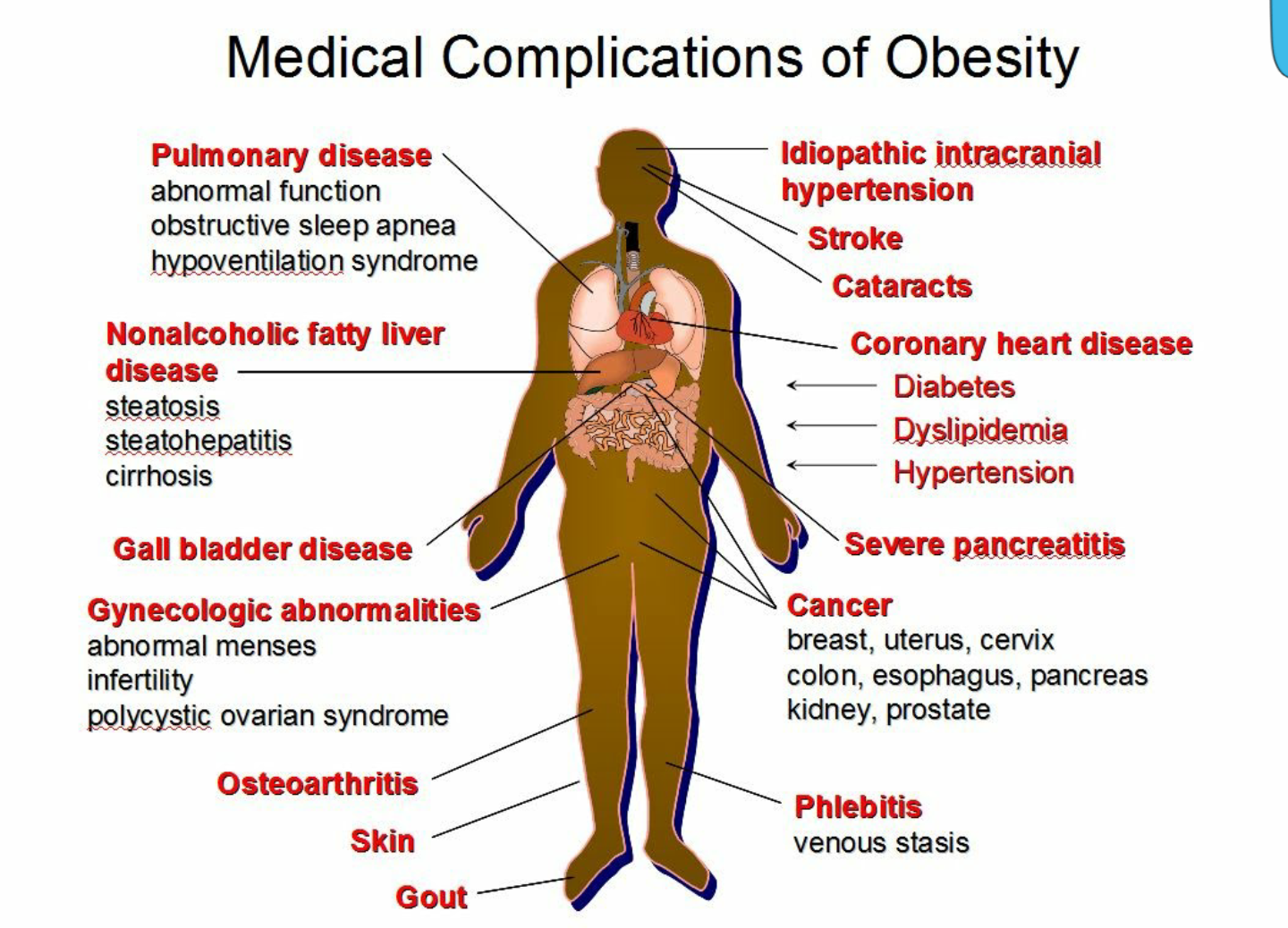 obesity choice or disease