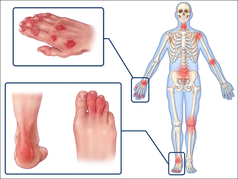physiotherapy management in rheumatoid arthritis Rheumatology physiotherapy many of the rheumatic conditions require good medical management what is arthritis rheumatology conditions rheumatoid.
